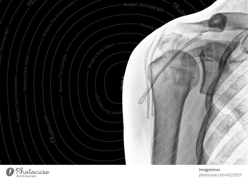 Röntgenaufnahme Schulter auf schwarzem Hintergrund. Chronische Luxation der langen Bizepssehne nach der Operation. SSC Sehnenkorkenzieher Anker. invertiertes Bild