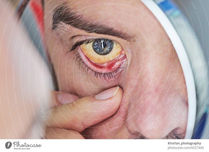 Menschliches Auge mit gelbem Augapfel, Nahaufnahme. Gelbe Augen sind ein Symptom für eine Lebererkrankung oder Hepatitis menschliches Auge gelbe Augen Blickfang