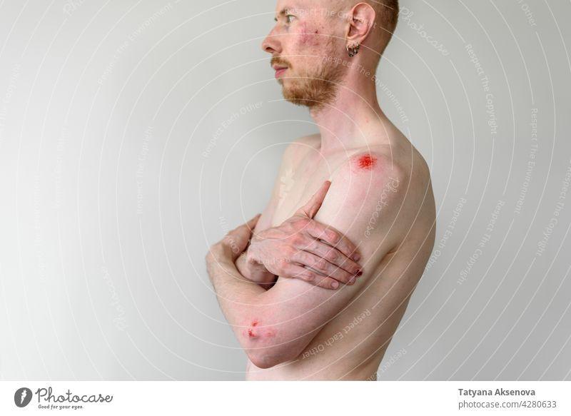 Mann mit vielen Wunden auf der Haut Gewalt Schmerz Opfer Häusliche Gewalt Verletzung heimisch Person zusammengeschlagen Missbrauch Erwachsener blaue Flecken