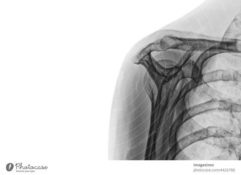 Röntgenbild eines weiblichen gesunden Körpers. Röntgenbild der weiblichen Schulter auf weissem Hintergrund isoliert. Erwachsene Anatomie Arm Bizeps Biologie