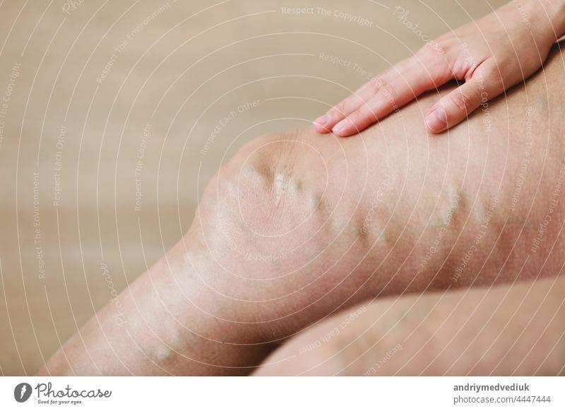 Schmerzhafte Krampfadern und Besenreiser an den Beinen einer aktiven Frau, die sich selbst hilft, die Schmerzen zu überwinden. Gefäßerkrankungen, Krampfadern Probleme, aktives Lebenskonzept.