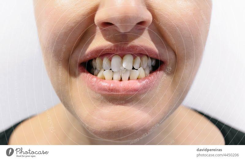 Mund einer Frau mit Engstand der Zähne schiefer Zahn Zahnüberhang unkenntlich kieferorthopädisch dental Problematik Zahnfleischeinfassungen hässlich Lächeln