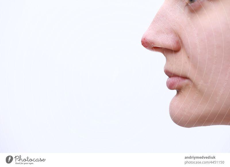 Herpes auf der Nase - Hübsche junge Frau mit Herpes auf der Nase. Menschliches Virus. Nahaufnahme der Nase mit Herpes-simplex-Infektion und Blasen medizinisch