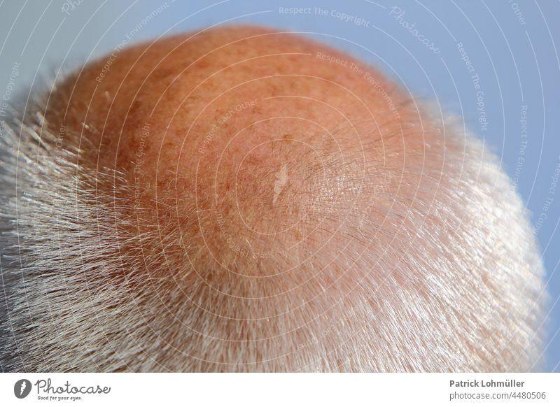 Glatze glatze kopf haar haut person mann leute nah makro haarausfall alt genetisch kopfhaut frisur kurz grau resthaar männer opa rentner haarverlust körper