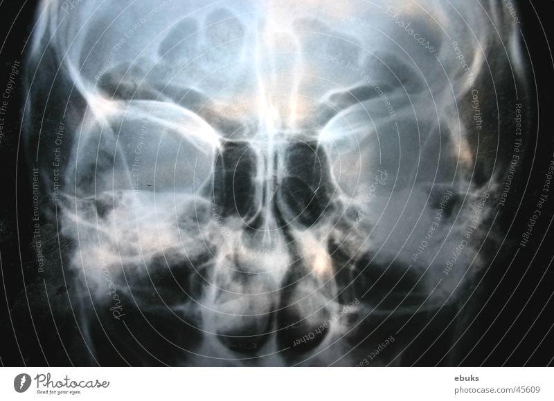 Roentgen Kopf 2 weiß schwarz Schädel Fototechnik