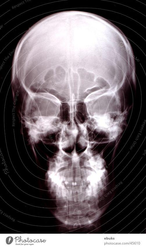 Roentgen Kopf 1 schwarz weiß Skelett Fototechnik Schädel Radiologie