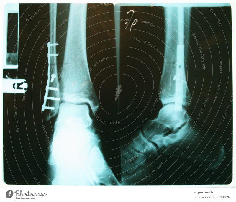 Alles wird gut. brechen rehabilitatieren Operation gebrochen Beine Fuß Fußknöchel Schraube Radiologie