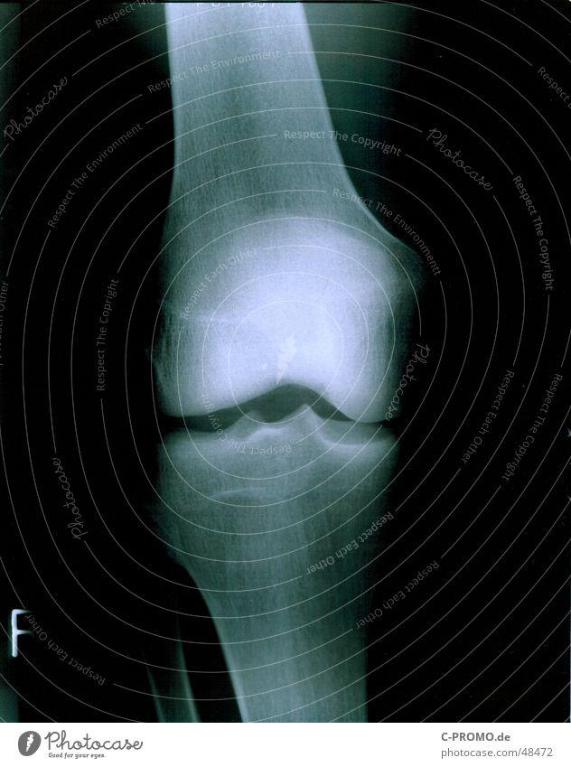 Mein rechtes Knie :: my right knees Mensch blau weiß schwarz Gesundheit Gesundheitswesen kaputt Arzt Schmerz gebrochen Strahlung Radiologie Skelett Gelenk