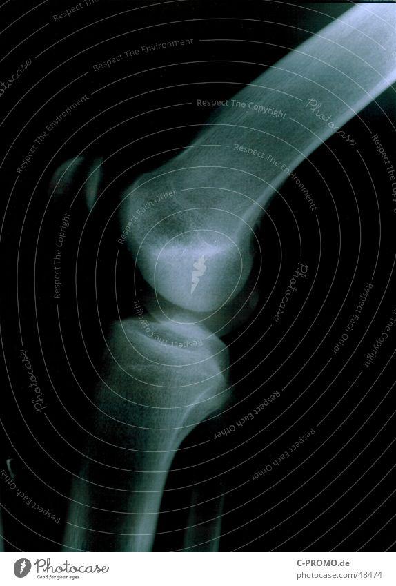 Mein rechtes Knie II :: my right knees II Gesundheitswesen Arzt Gelenk kaputt Kniescheibe Skelett Strahlung schwarz Licht weiß Profil Unterschenkel Oberschenkel