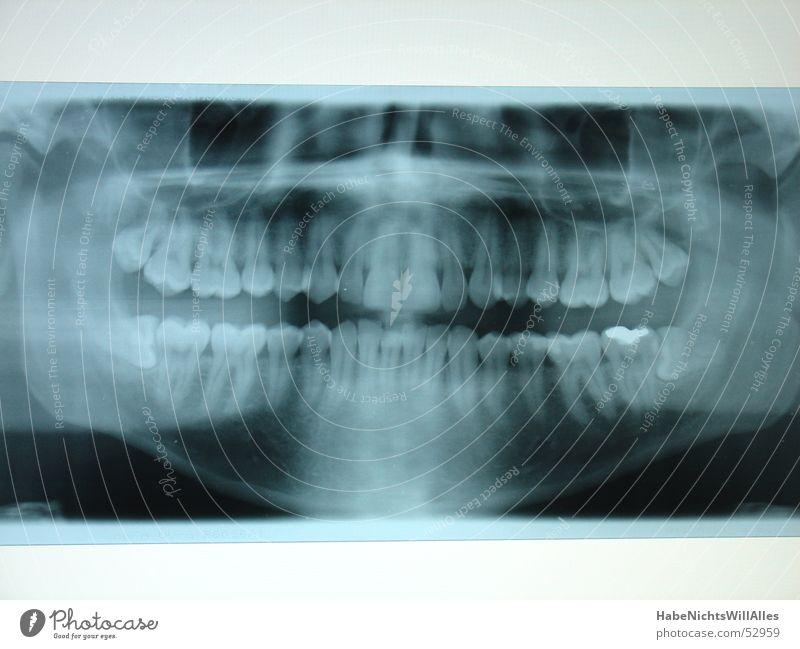 SchieferKiefer? blau Zähne Skelett Wurzel Radiologie Kiefer Röntgenstrahlen Leuchtkasten Amalgam Mundhöhle