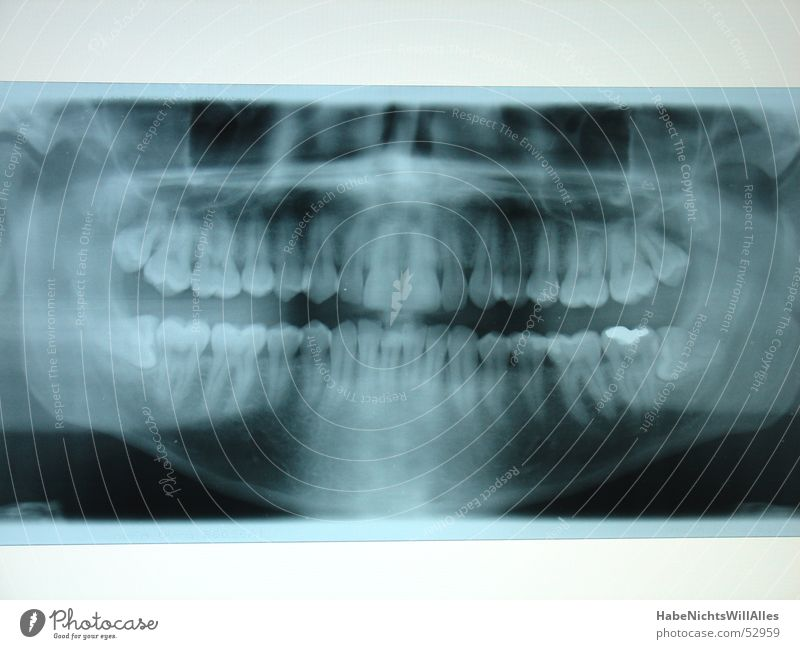 SchieferKiefer? Skelett Leuchtkasten Amalgam Röntgenstrahlen blau Wurzel zahnreihe plombe Mundhöhle Zähne Radiologie