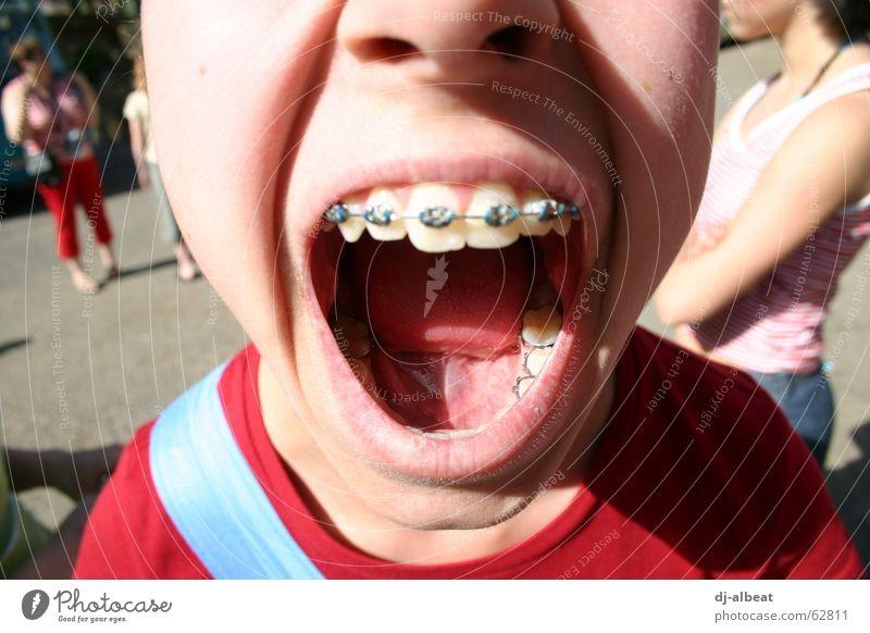 Mach's Maul Auf! Zahnspange Mädchen glänzend laut rot protestieren Außenaufnahme Gesundheit Wut Ärger Kind Mund offen silber Zunge Lippen schreien blau Haut