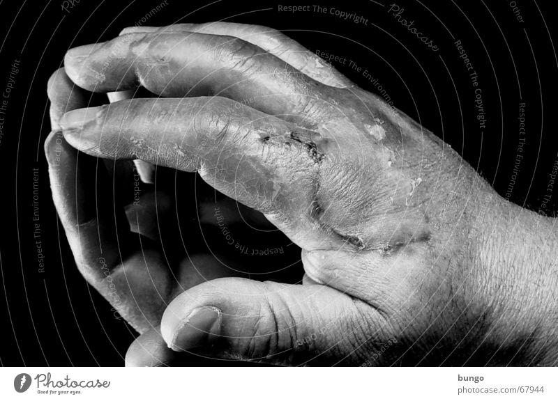 labor vulnerat Handrücken Finger Zeigefinger Daumen Mittelfinger Ringfinger Fingernagel kaputt Wunde Kruste Reflexion & Spiegelung Handwerk