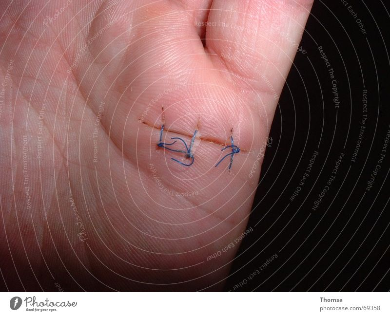genähte Narbe an der Hand Naht Wunde Körperteile Handfläche