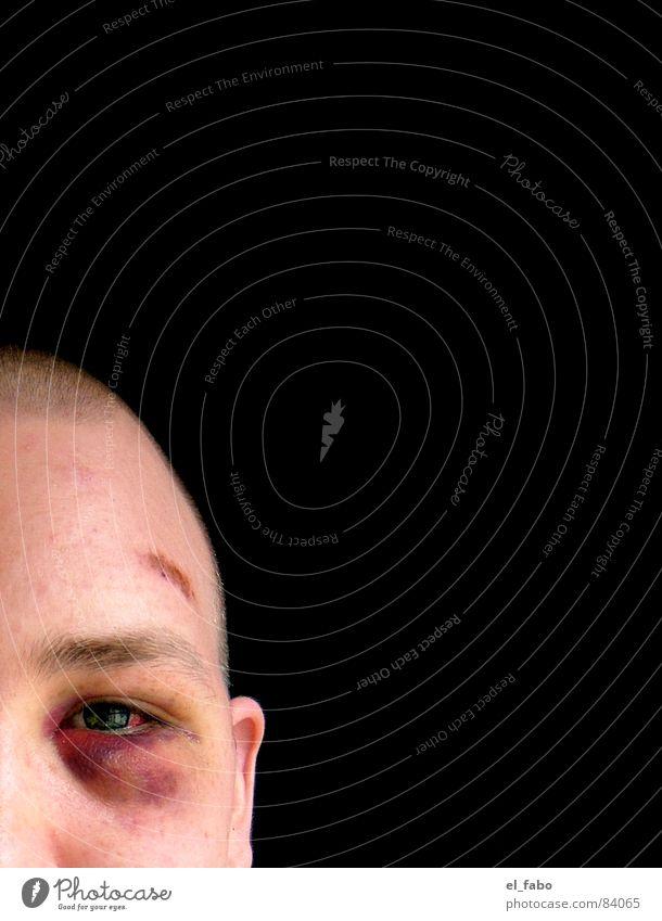 conehead Mann Gewalt Schmerz Konflikt & Streit Veilchengewächse Überfall brutal Blaues Auge (Bluterguß)