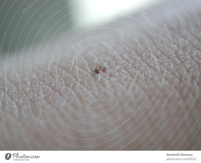 Dot Leberfleck Makroaufnahme Mensch Haut Detailaufnahme Haare & Frisuren Melanom Pigmentfleck