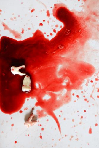 es werden Köpfe rollen... Gefühle Stimmung Angst Tropfen Zähne Todesangst Krankheit Wut Gewalt Aggression Blut Zahnpflege Zahnarzt Hass Rache Karies