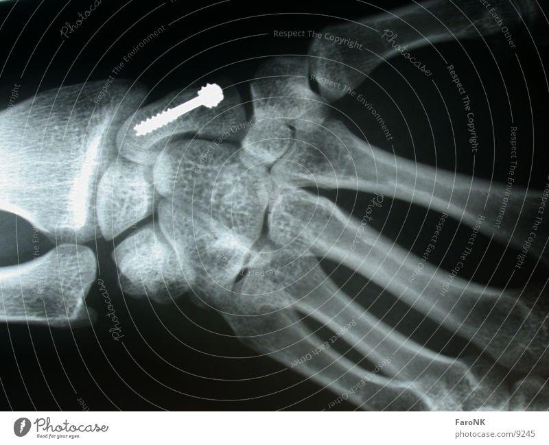 Verschraubt Hand obskur Schraube Skelett Radiologie Röntgenbild
