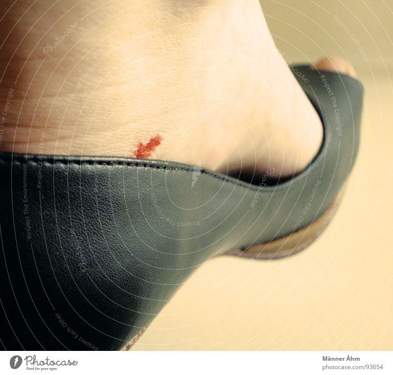 Frauenleiden Frau schwarz Fuß Schuhe Haut Schmerz Blase Blut Leder Wunde Treppenabsatz Schürfwunde Lederschuhe stechender Schmerz