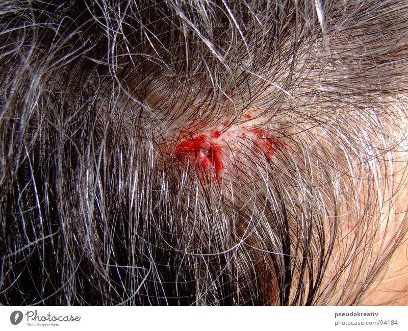 Armin - pain for pleasure Wunde Blut grauhaarig schwarz Blutung Kopfschmerzen Mann Angst Panik head Platzwunde laceration Kopfverletzung Haare & Frisuren hair