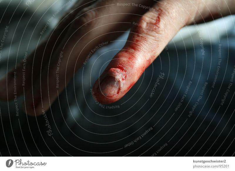 ende vom nagelbett... Mann Hand rot Finger Schmerz Blut Unfall Nagel Wunde Mensch