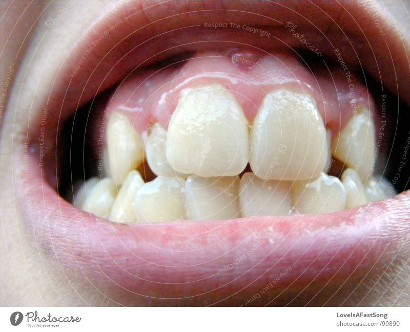 lovely teeth rosa gelb Zahnarzt Vertrauen mouth lips confidence anger gums crooked face tartar dentures skin